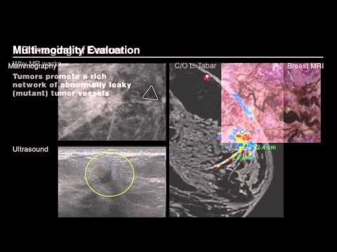 Breast Magnetic Resonance Imaging: What. When. Why.
