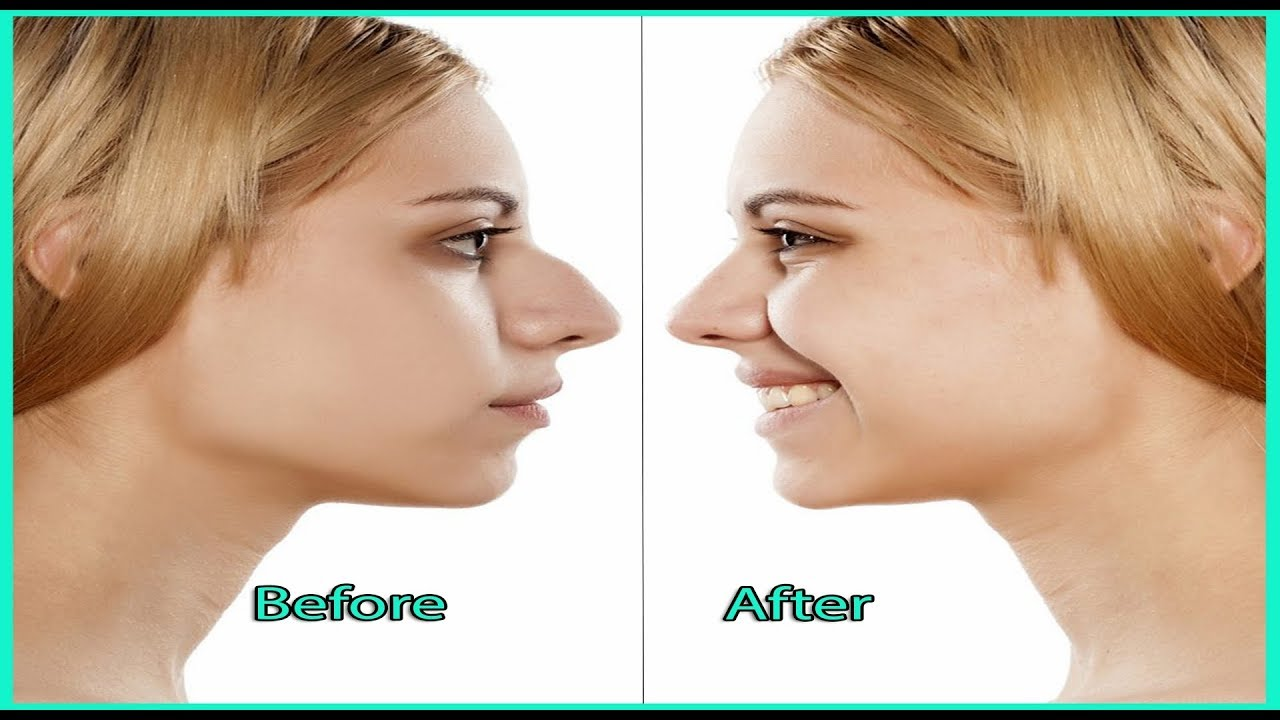 How To Make Your Nose Small Overnight By Simple Tips Charlies