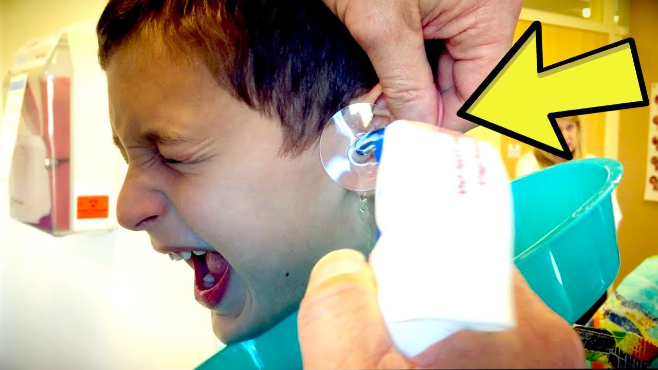 Download Boy Gets 'Pencil' Stuck In Ear, Doctor Pulls Out Something Much Worse