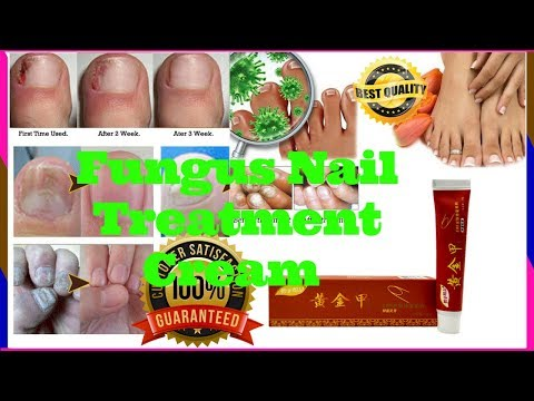 Antifungal Nail Treatment  Cream | Best  Antifungal  For Nails Cream | Best  Nail Treatment Cream