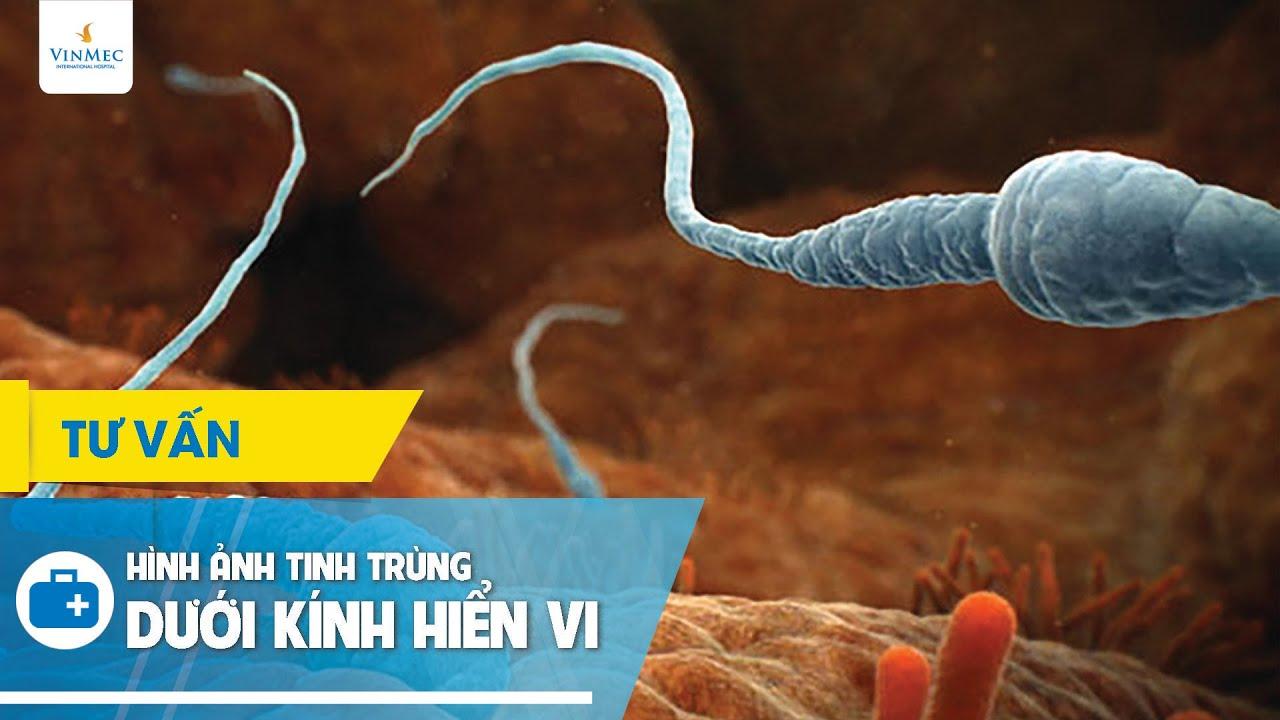 Hình ảnh tinh trùng dưới kính hiển vi