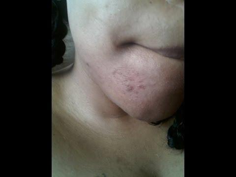 hqdefault - Does Bio Oil Cause More Acne