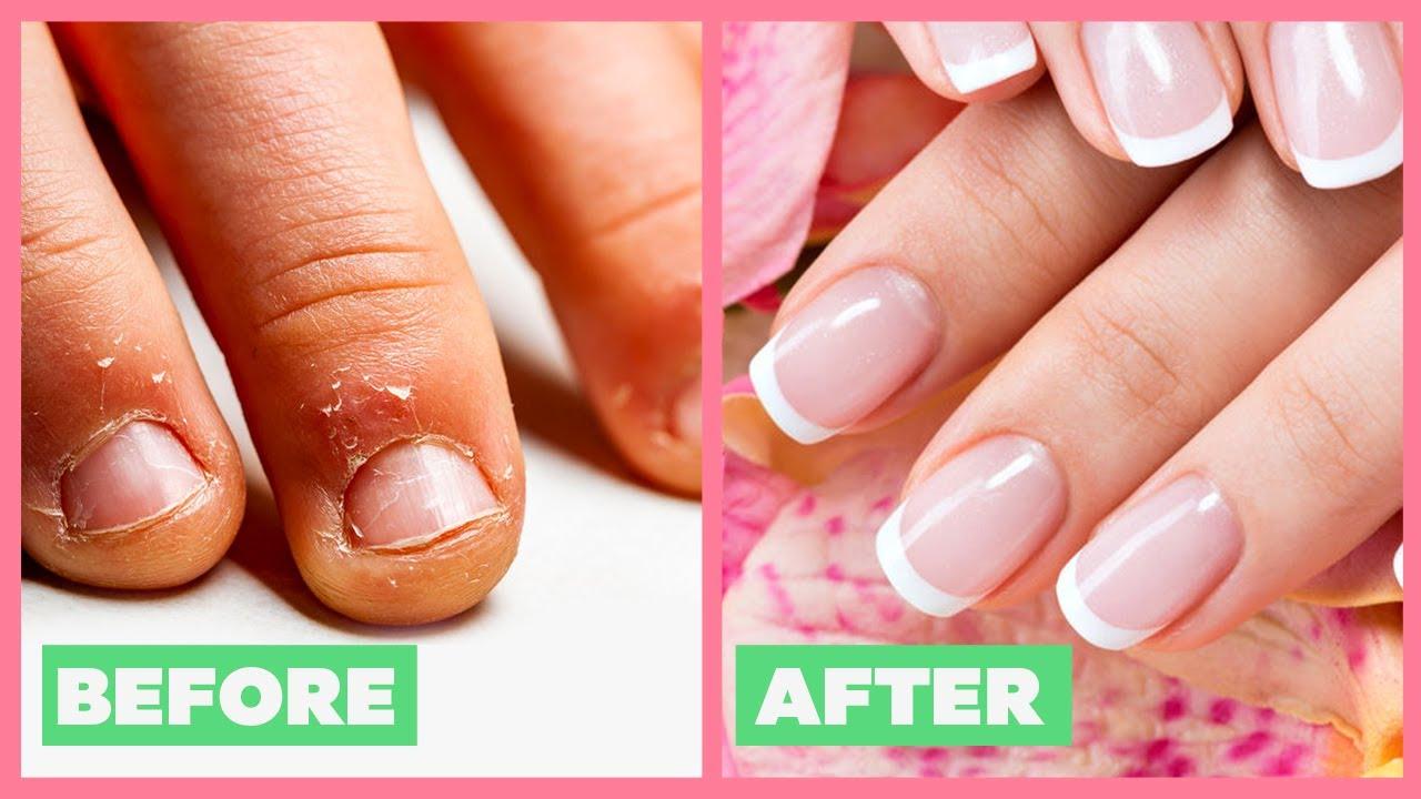 How To Grow LONG & Strong Nails At Home | नाखून लम्बे मजबूत कैसे बनाये | Nail Care | Be Beautiful