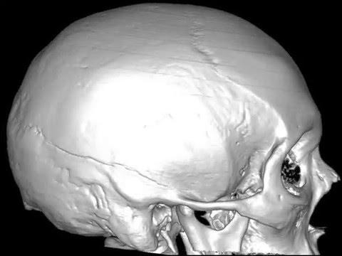 Перелом теменной и височной кости