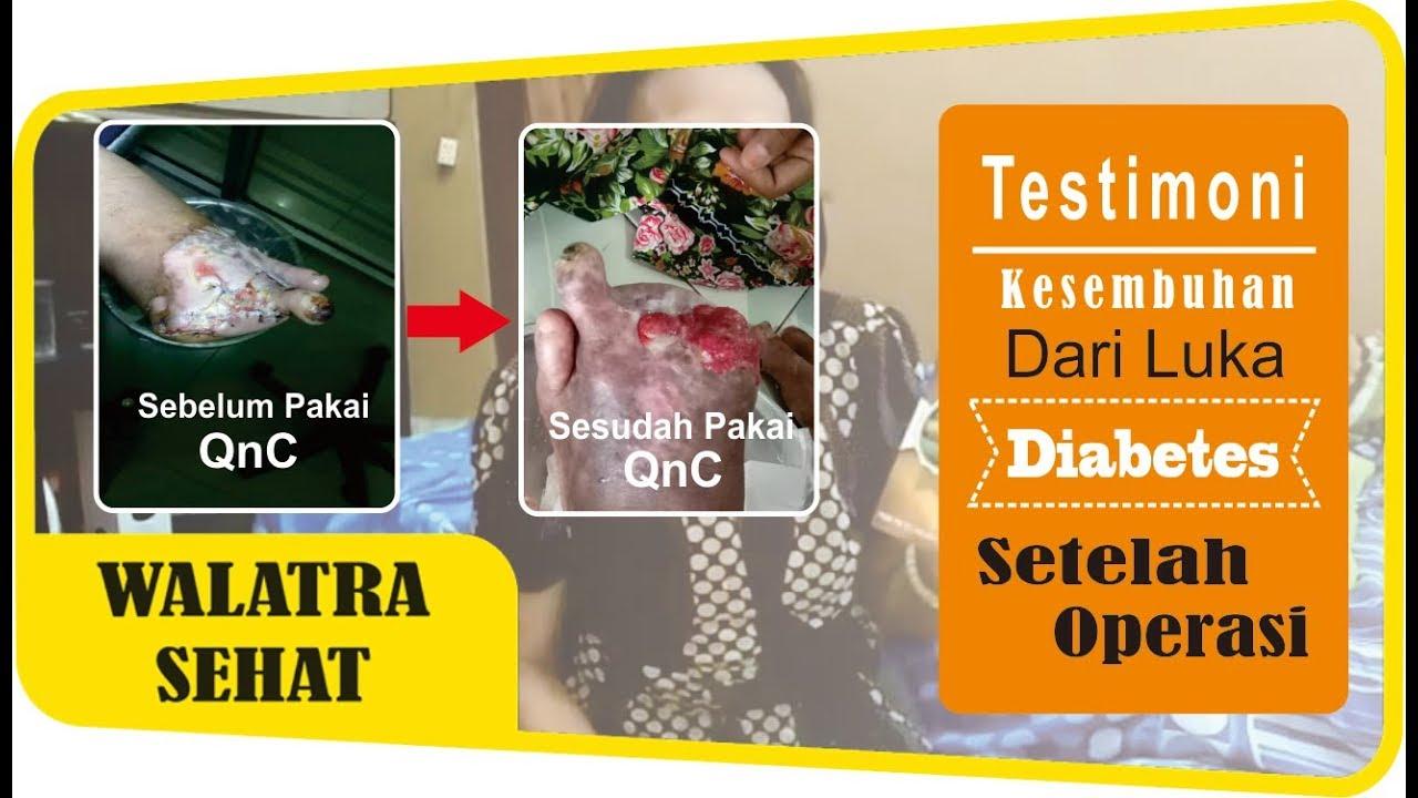 Image result for testi qnc untuk diabetes