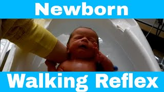 Primitive Reflex | Newborn Baby Walking Reflex (Stepping Reflex)