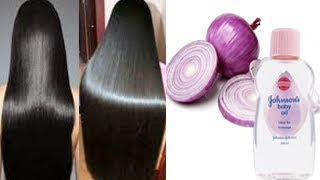 Surprising Hair Grow Long & Stop Hair Fall With Onion !! Super Fast Hair Growth Challenge!