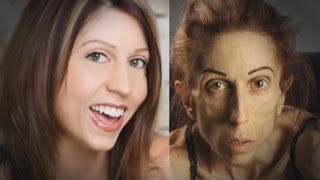 Anorexic Actress Rachael Farrokh Says Only One Hospital Can Help Her