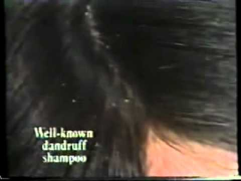 UK TV Adverts 1978 Head & Shoulders