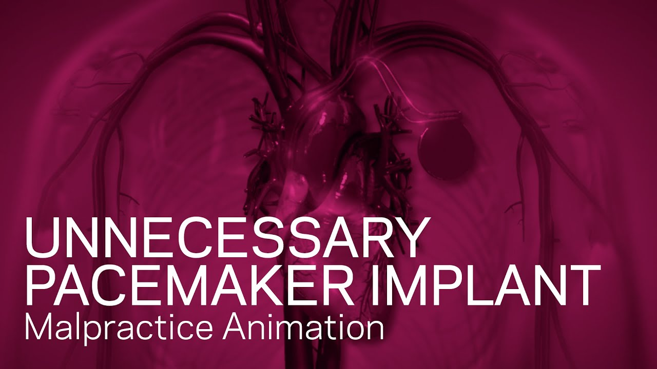 Pacemaker - Medical Device Animation