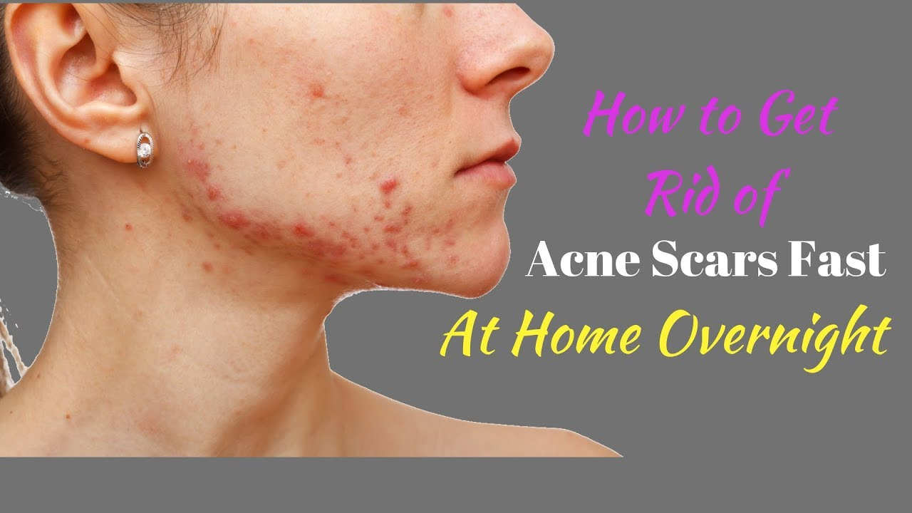 How To Get Rid Of Acne Scars Fast At Home Overnight