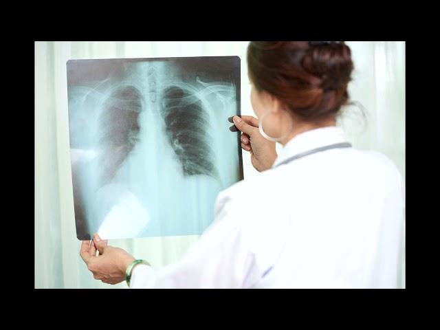Alerta tuberculosis: Aumento de casos en el marco de la pandemia COVID-19