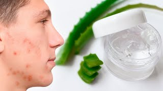 How to Make Your Own Acne Gel That Actually Works