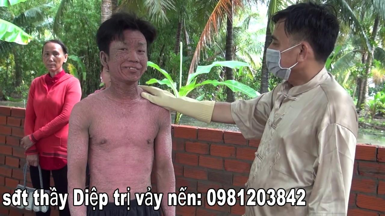 Anh Thành bị bệnh vảy nến báo tin vui/KPMT