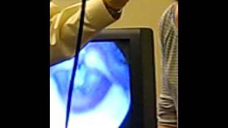 Video Stroboscopy - Steph