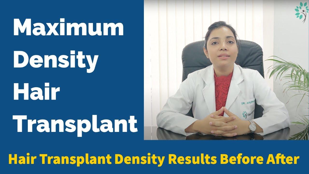 Hair Transplant Density Factors | High Density Hair Transplant Results | Hair Transplant in India