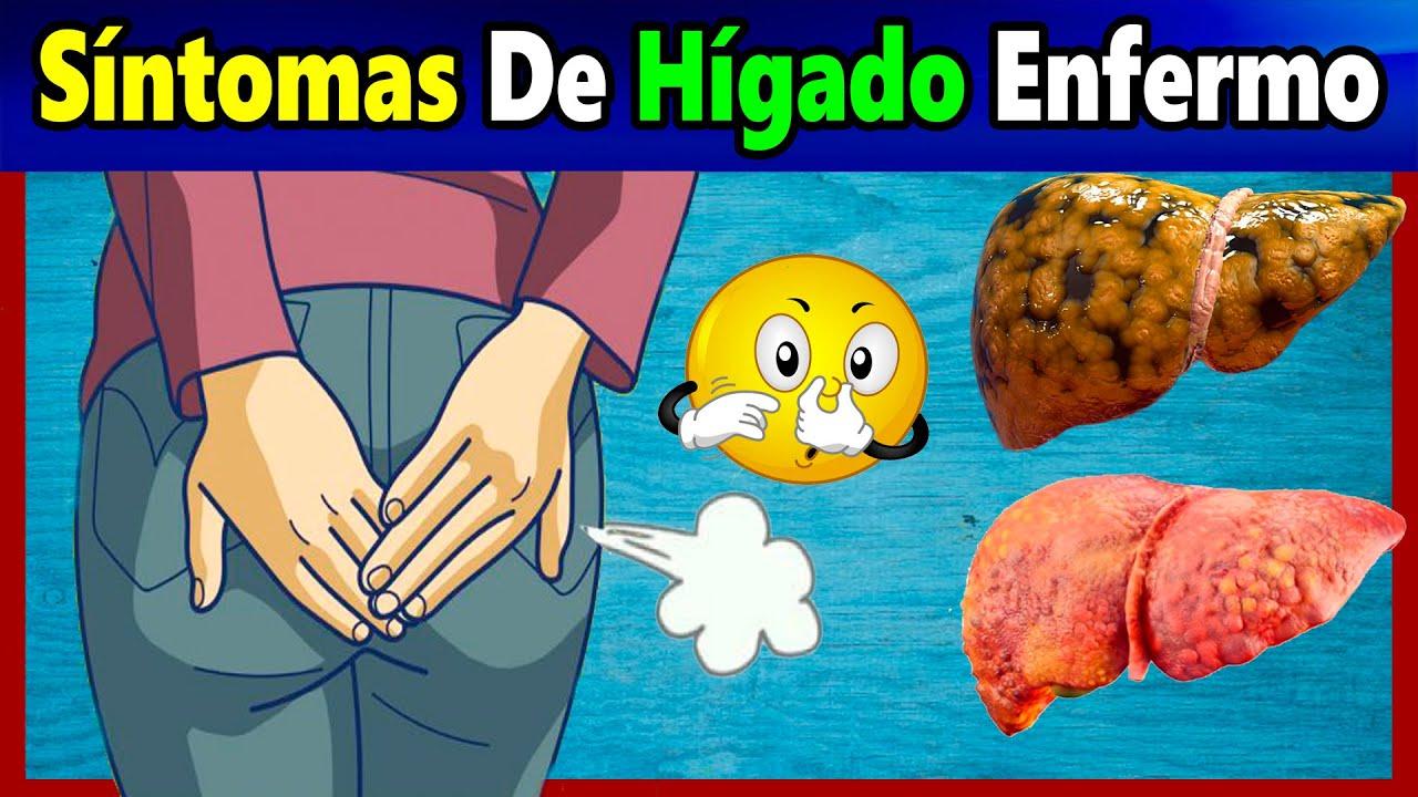 Síntomas de un Hígado Dañado que Muchos Ignoran / Remedio Para Tratar el Hígado Enfermo.