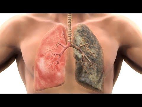 Псориаз: причины, диагностика, лечение, профилактика