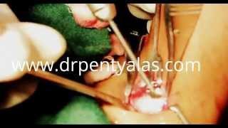 Trachea Feminization Shave Thumbnail