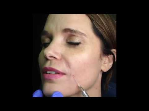 Dr. Lee demonstrates MicroCannula for Juvederm