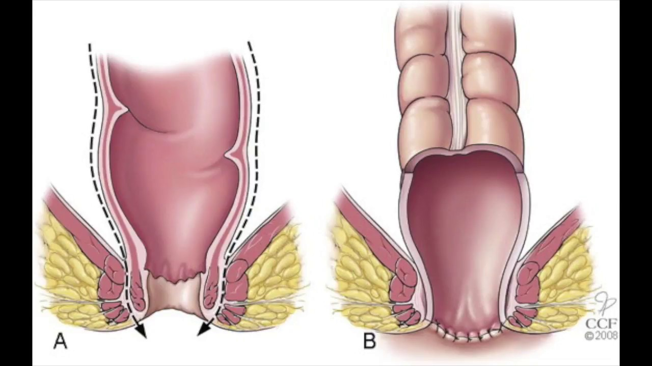 medium resolution of laparoscopic anterior and inter sphincteric resection of low rectal cancer