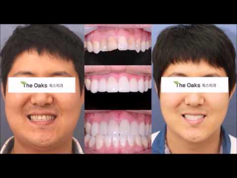 Dental Veneers in Korea (Porcelain Veneers)