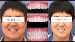 Dental Veneers in Korea (Porcelain Veneers)