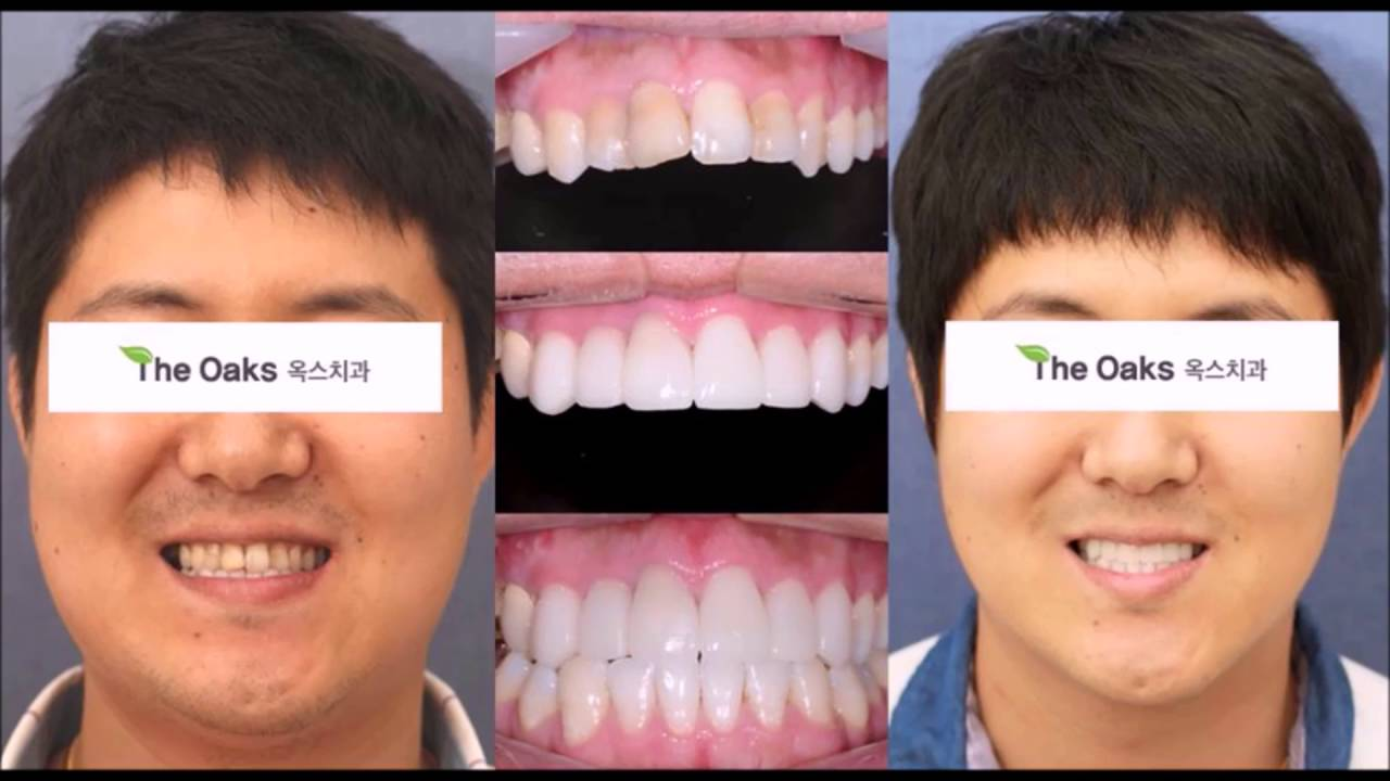 Dental Veneers In Korea Porcelain Veneers Youtube