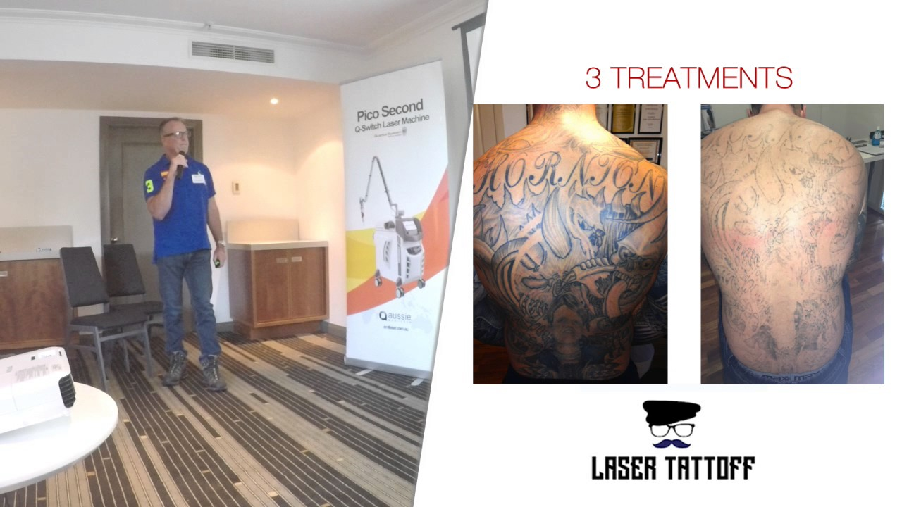 PicoSecond Laser Tattoo Removal - Quanta Discovery Pico Review - YouTube