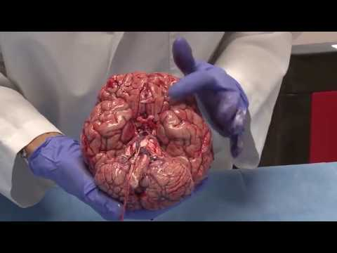 Fresh Human Brain Autopsy