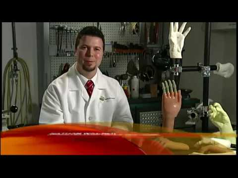 World's First Bionic Fingers