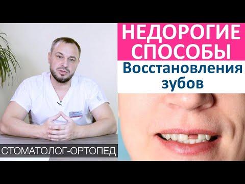 Как восстановить зубы недорого! Восстановление утраченных зубов дешево