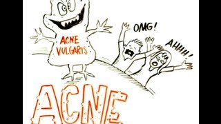 What is the Best Way to Treat Acne?