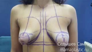ДО и после пластической операции. Тубулярная грудь. Хирург Седышев Самир.