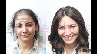 En Doğal Bayan Protez Saç Uygulaması