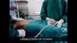 Liposuction : Harleys Cosmetic Clinic Thumbnail