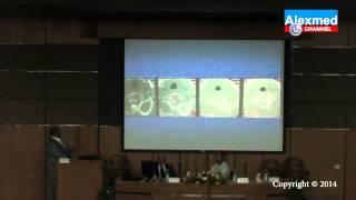 Alex NeuroSpine 2014 - Case Presentation by Dr. Yasser Elbanna