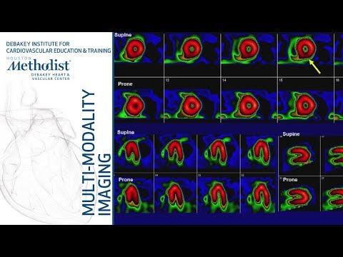 Nuclear Cardiology: Understanding The Basics (John J. Mahmarian, MD) October 16, 2018