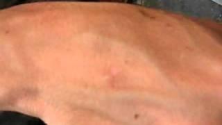 une boule sous la peau