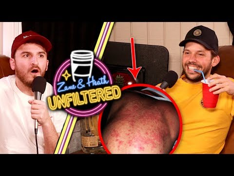 Heath's Drink Caused This Reaction - UNFILTERED #20