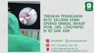 Kenali Gejala Infeksi Saluran Kemih, Tayang 25 Oktober 2017.