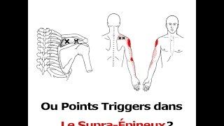 Tendinite de l'épaule ou points trigger?