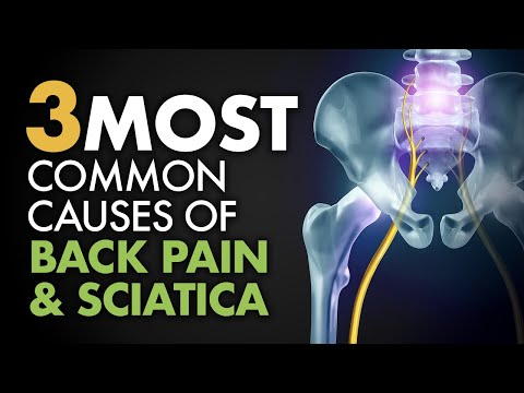 hqdefault - Causes Sciatica Back Pain