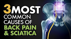 The 3 Most Common Causes of Back Pain & Sciatica