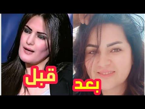 سما المصرى شكلها قبل وبعد التجميل Youtube