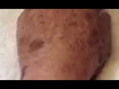 Removing Dark Spots, Sun Spots, & Sun Damage | IPL Treatment Photofacial