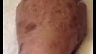 Removing Dark Spots, Sun Spots, & Sun Damage   IPL Treatment Photofacial