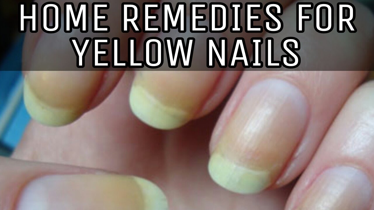 HOME REMEDIES FOR YELLOW NAILS - YouTube