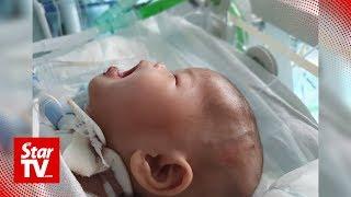 Little Ainul Mardhiah Successfully Operated On In London
