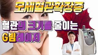 얼굴에 비치는 실핏줄 모세혈관확장증  G빔레이저로 혈관…
